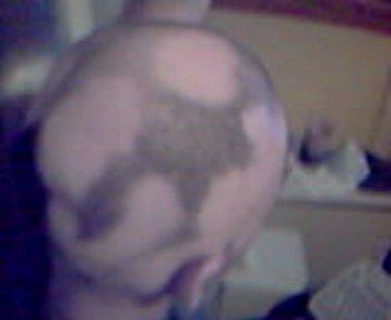 Severe case alopecia areata on patients head, ...