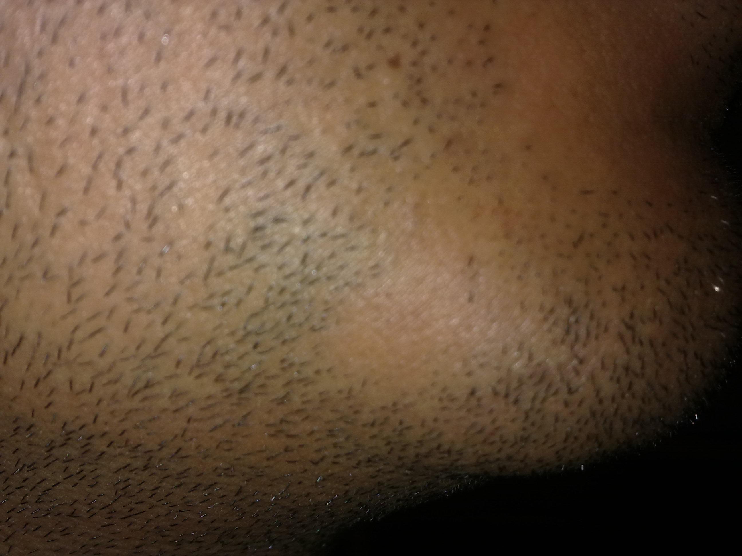 alopecia areata description