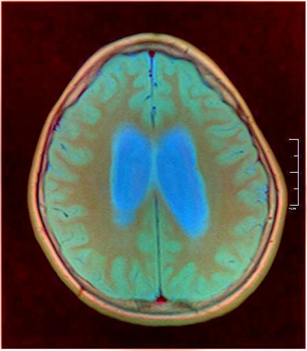 Brain MRI 0015 13.jpg