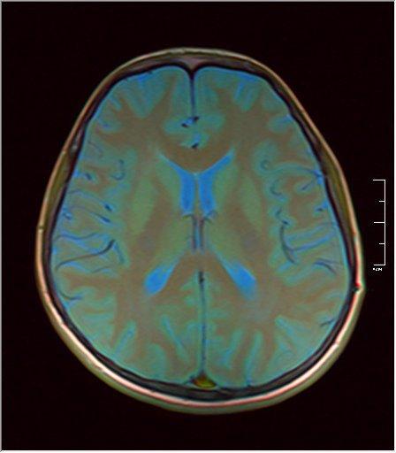 Brain MRI 0146 08.jpg