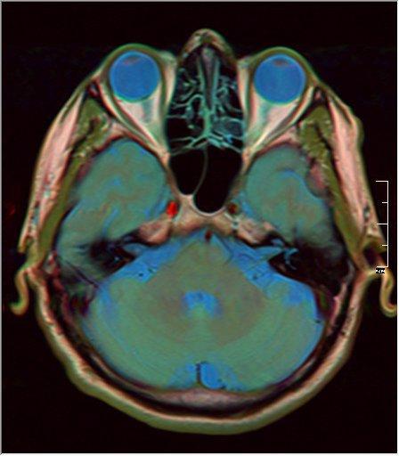 Brain MRI 0211 15.jpg