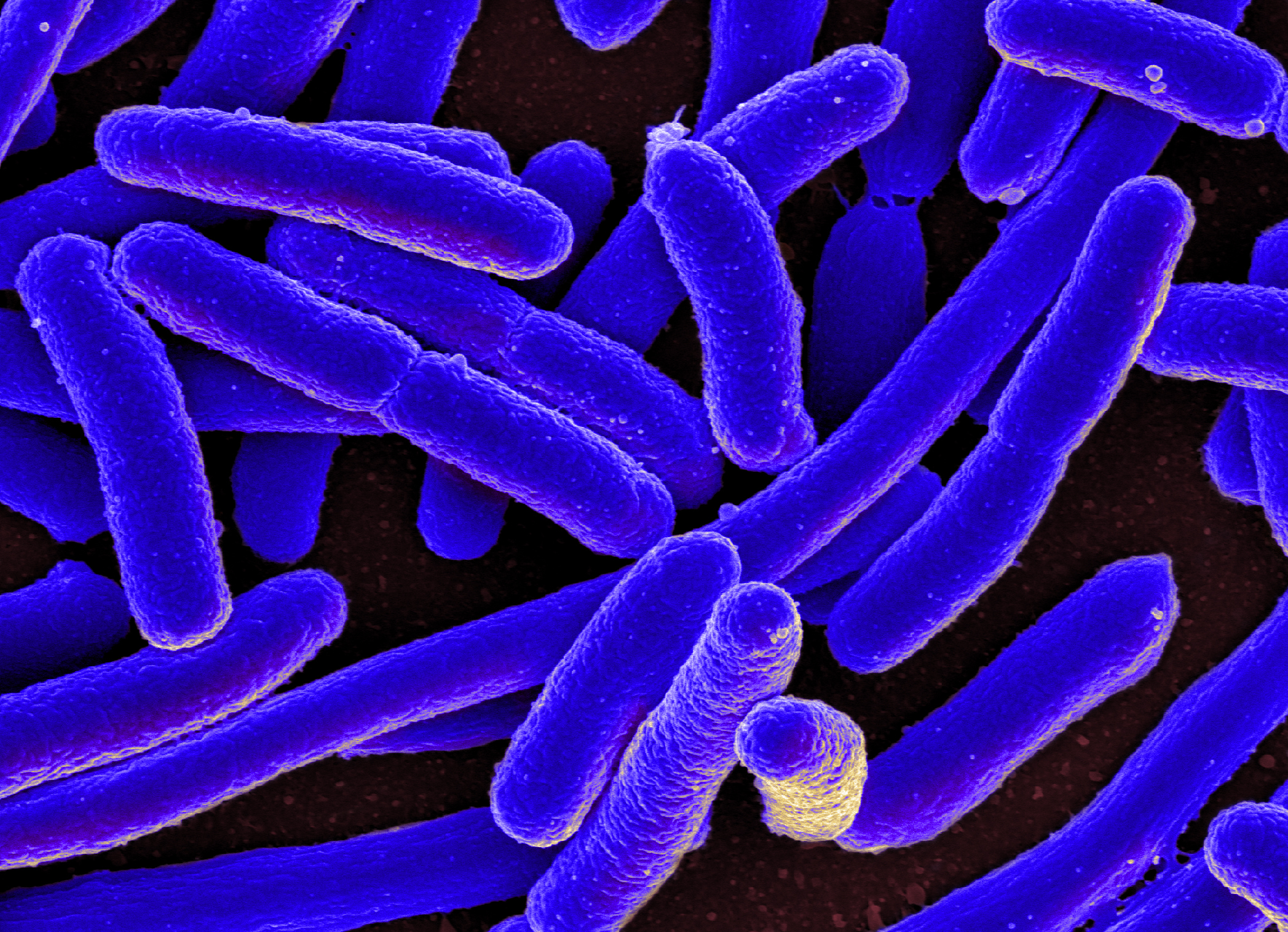 e coli bacteria can be removed by carpet cleaning