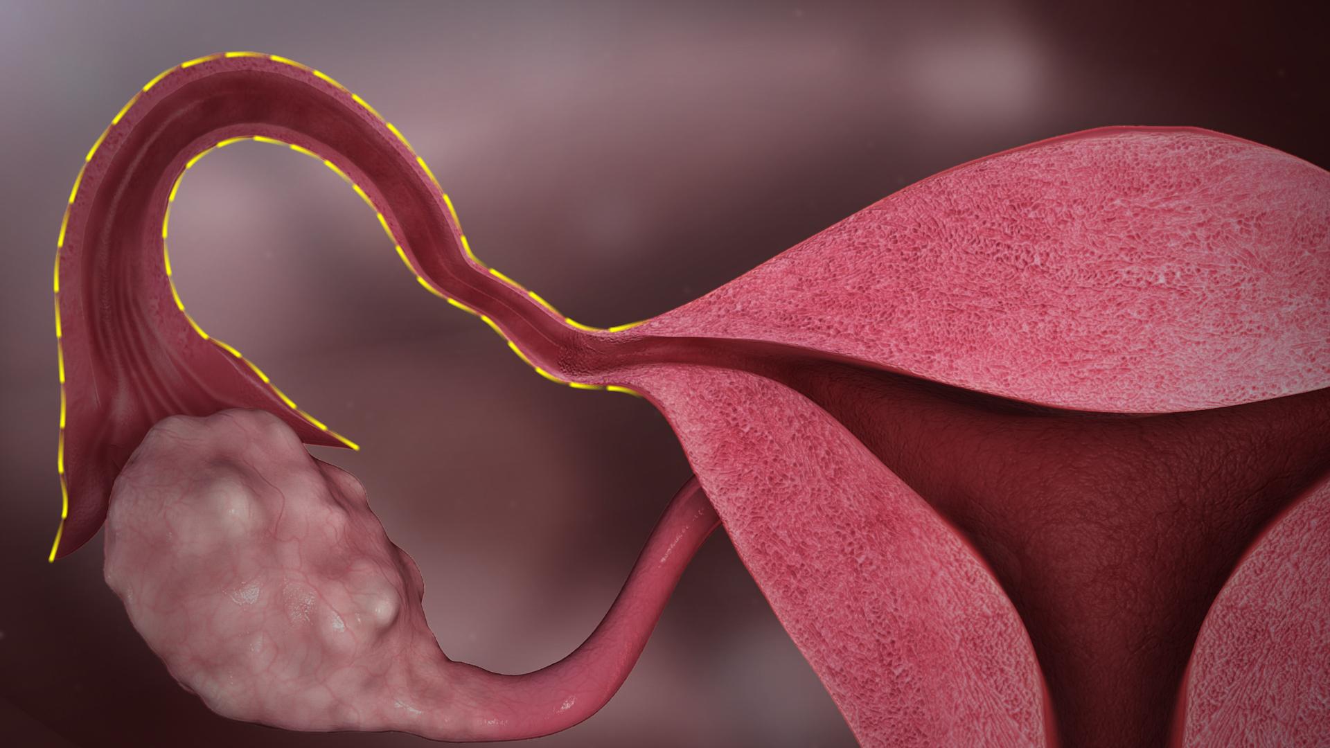 sintomas del cancer de utero o endometrio