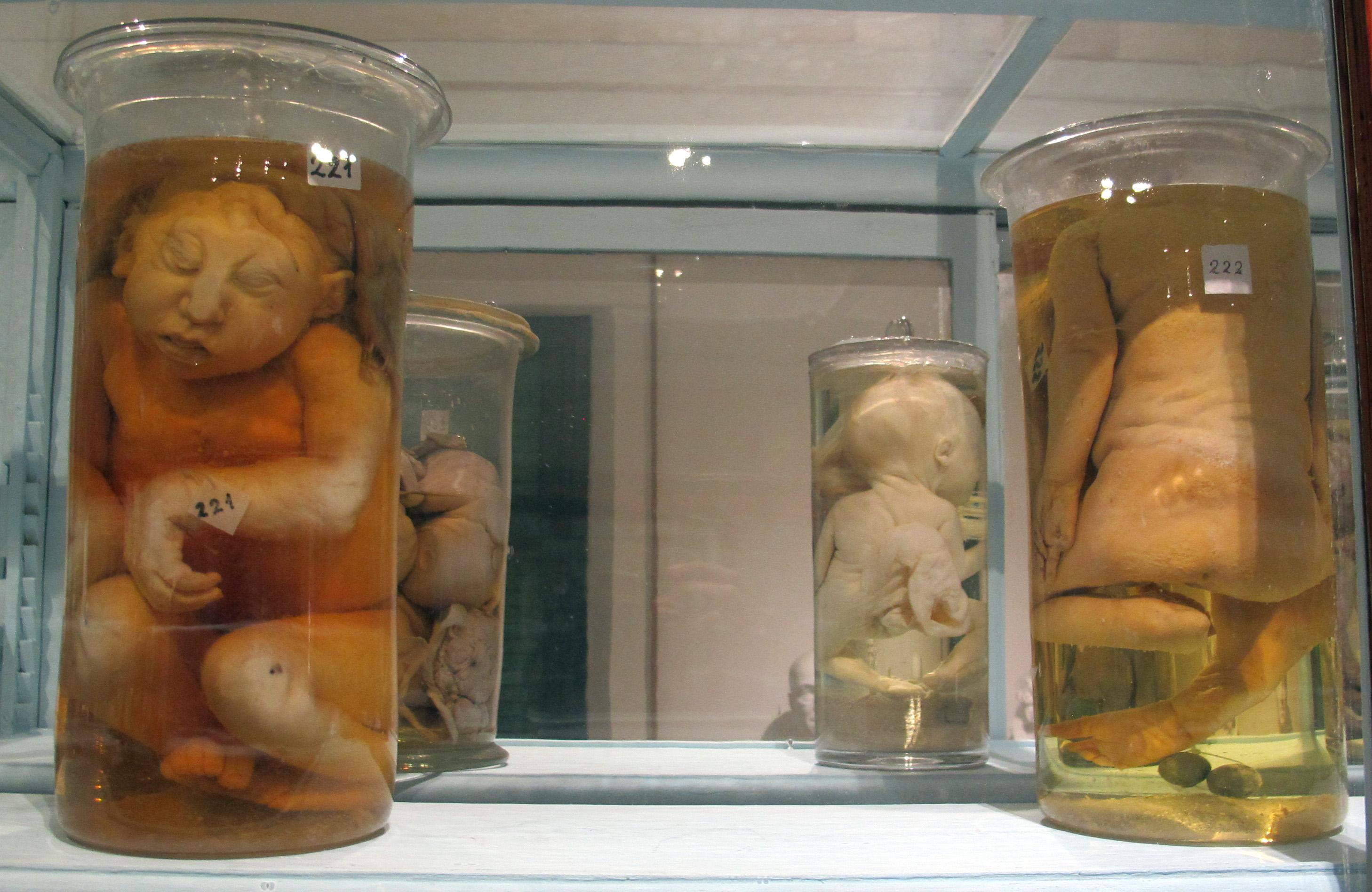 File:Istituto di anatomia patologica, museo, campioni 17 feti ...