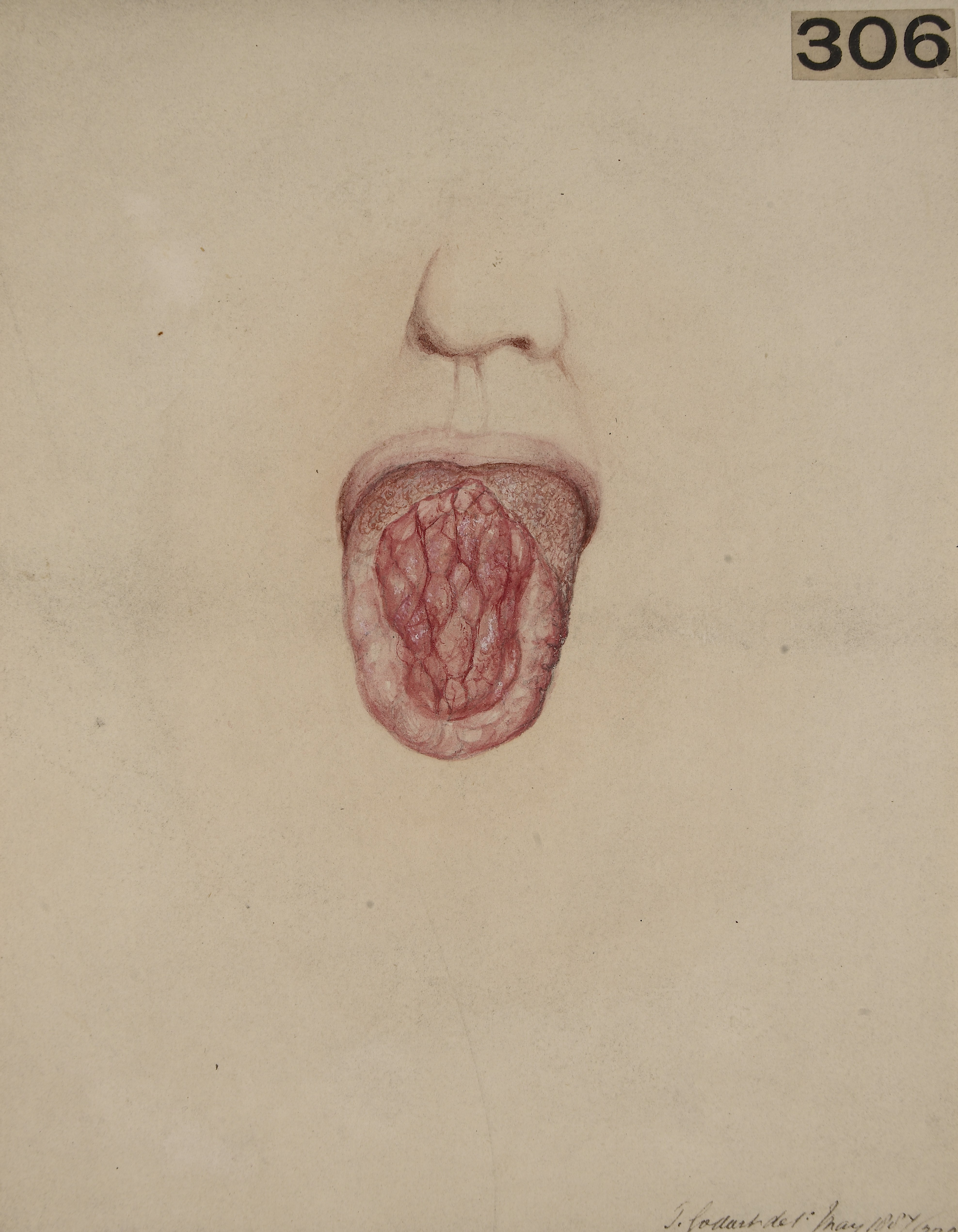 Filetongue From A Case Of Congenital Syphilis Wellcome L0062746g