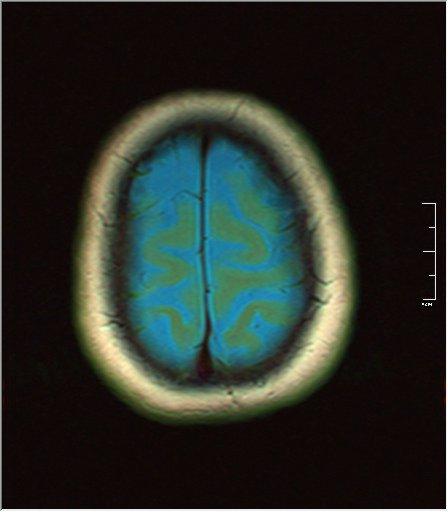 Brain MRI 0129 01.jpg