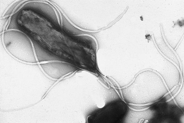 Elektronmikroskopbild av Helicobacter pylori.