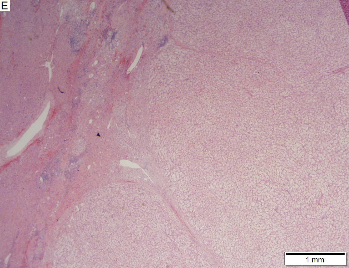 Hepatocellular carcinoma, clear cell variant