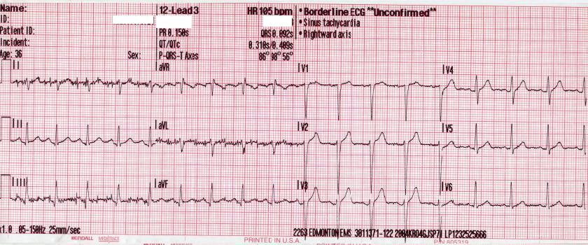 EKG Tachykadie 105bpm