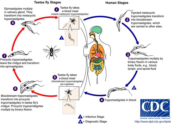 Dpdx paraziták és egészség, Mi a kolecisztitis, tünetei és kezelése, Kerekféreg kezelés tünetei