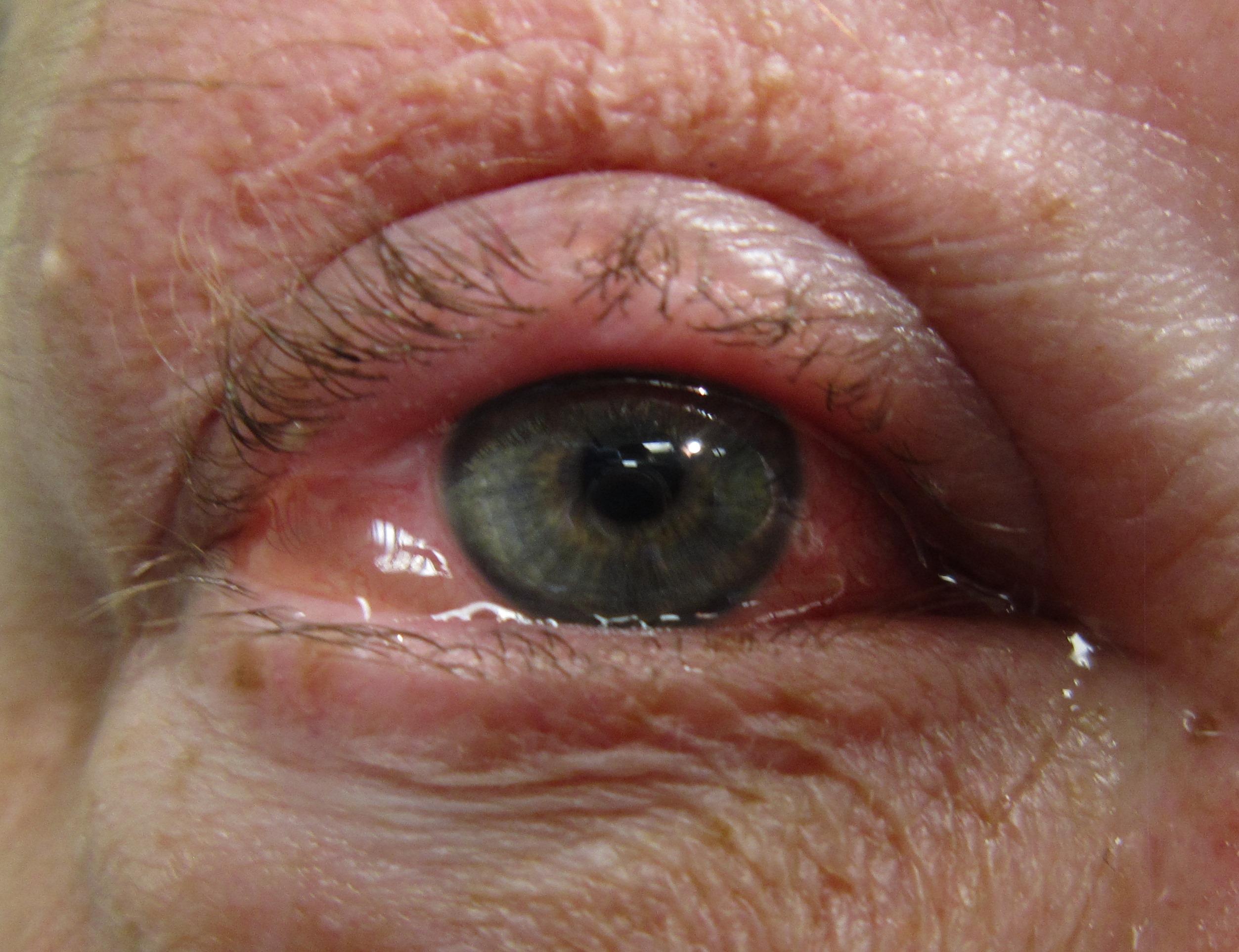 Allergic Conjunctivitis - University of Illinois College of...