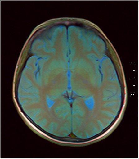 Brain MRI 0146 10.jpg