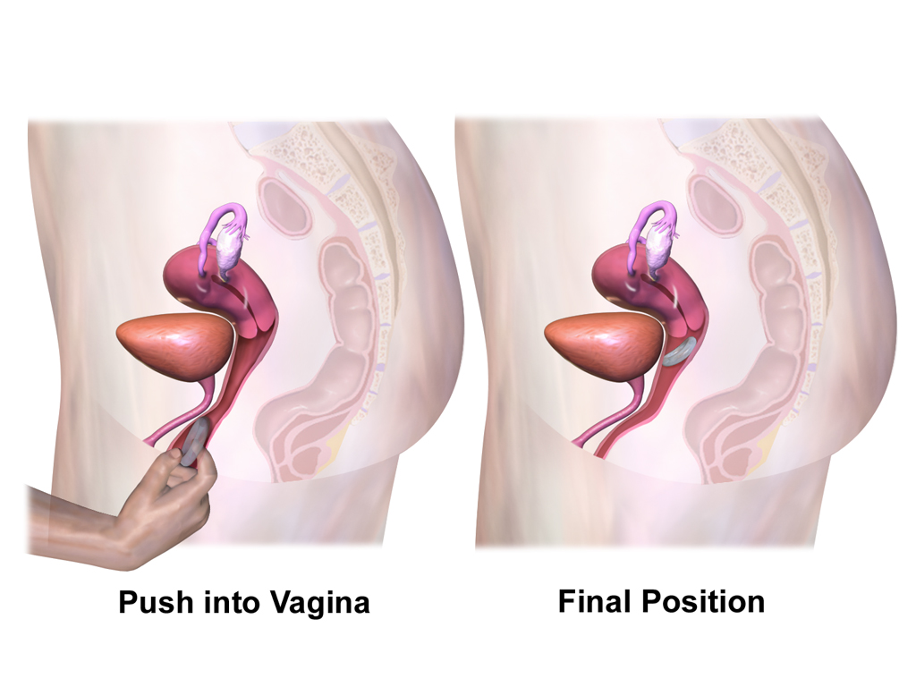 What is the vaginal ring