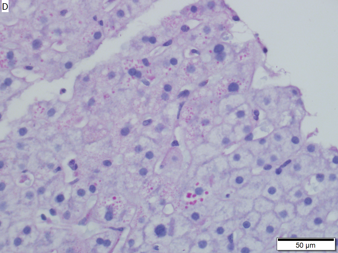 Alpha 1 anti-trypsin deficiency in 29 year old woman.