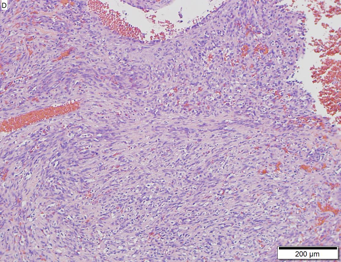 Angiosarcoma of right atrium