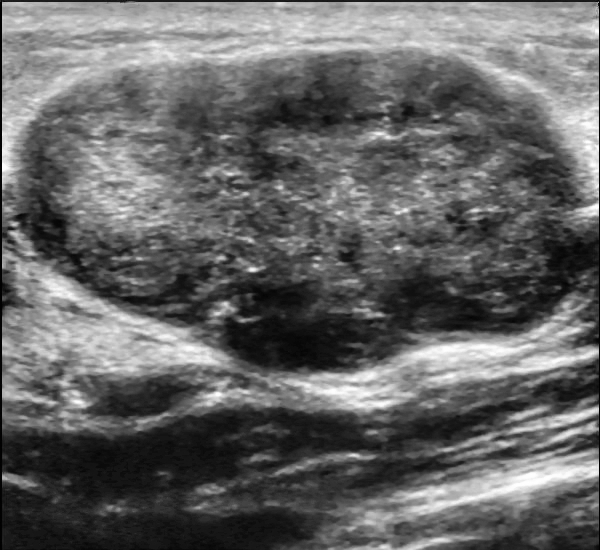 When Do You Go For A Dating Ultrasound