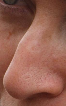 Human Nose Wikipedia