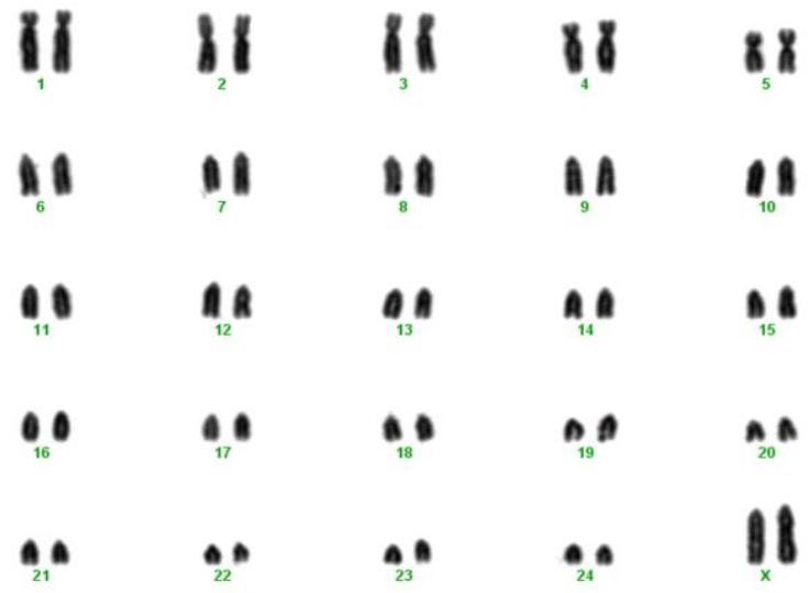 File:Karyotype of female Nili Ravi buffalo png - Wikimedia