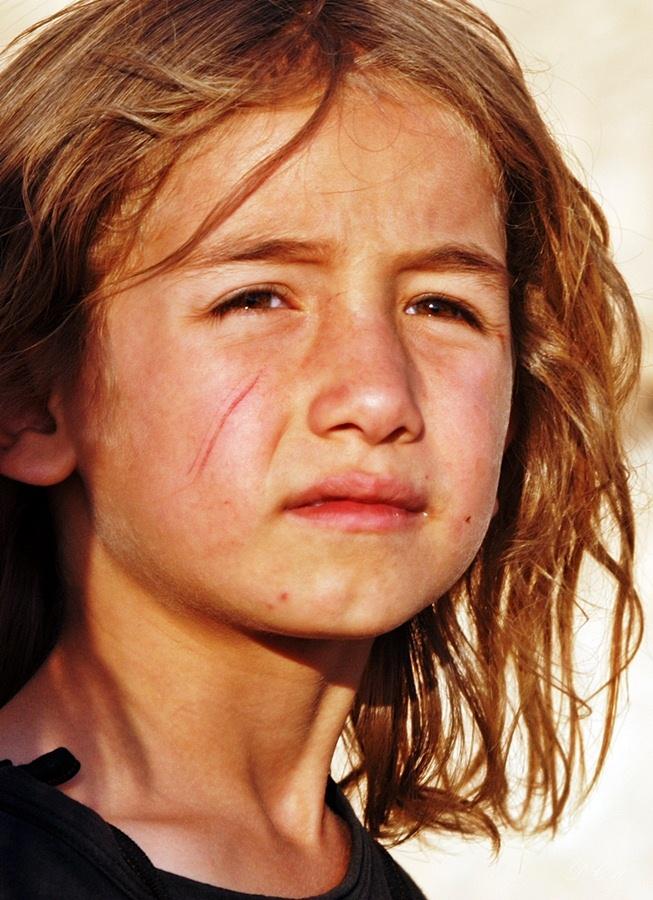 Menina curda com o rosto arranhado e a expressão sofrida