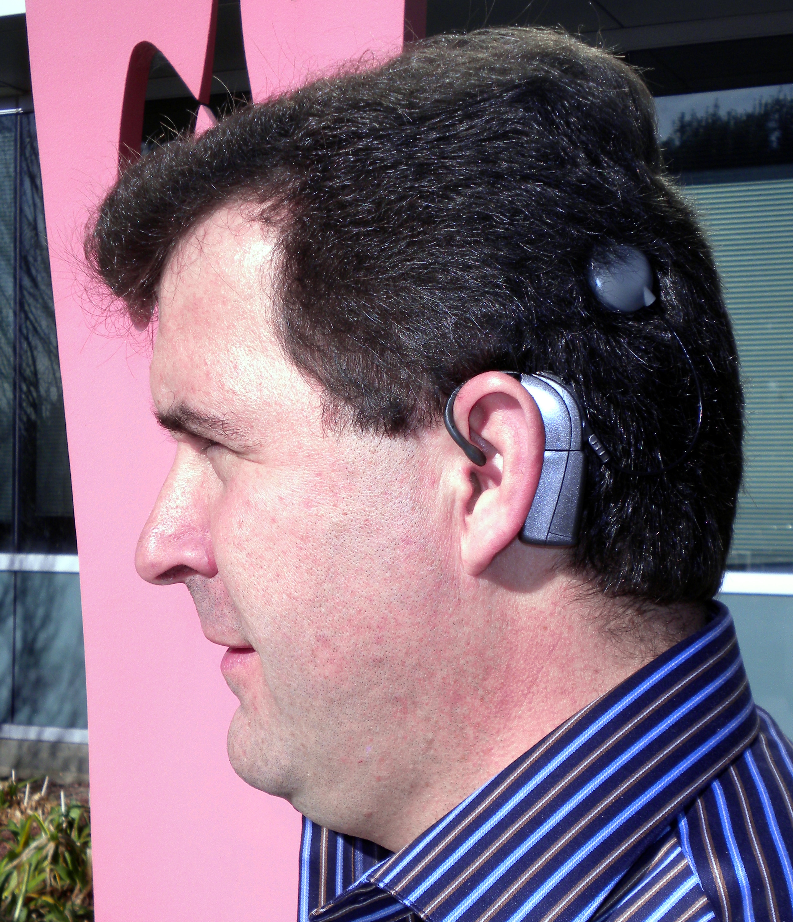 file ken bolingbrokes cochlear implant     wikimedia commons