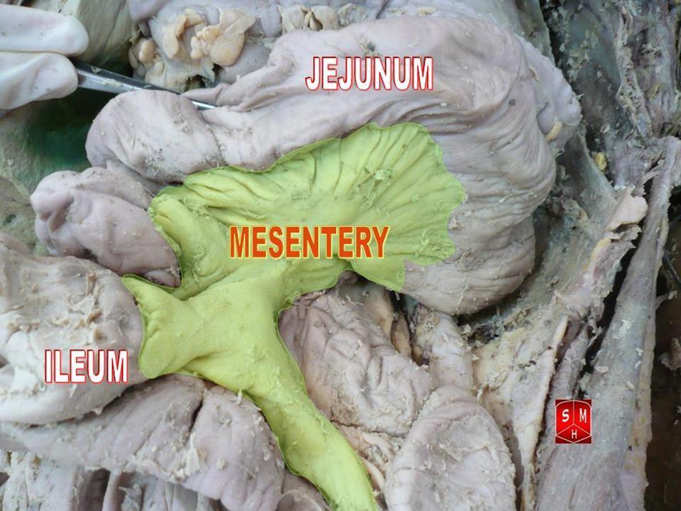 File:Mesentery.jpg - Wikimedia Commons