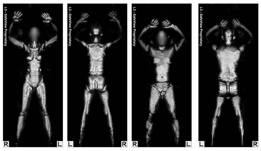 male and female scans, front and back