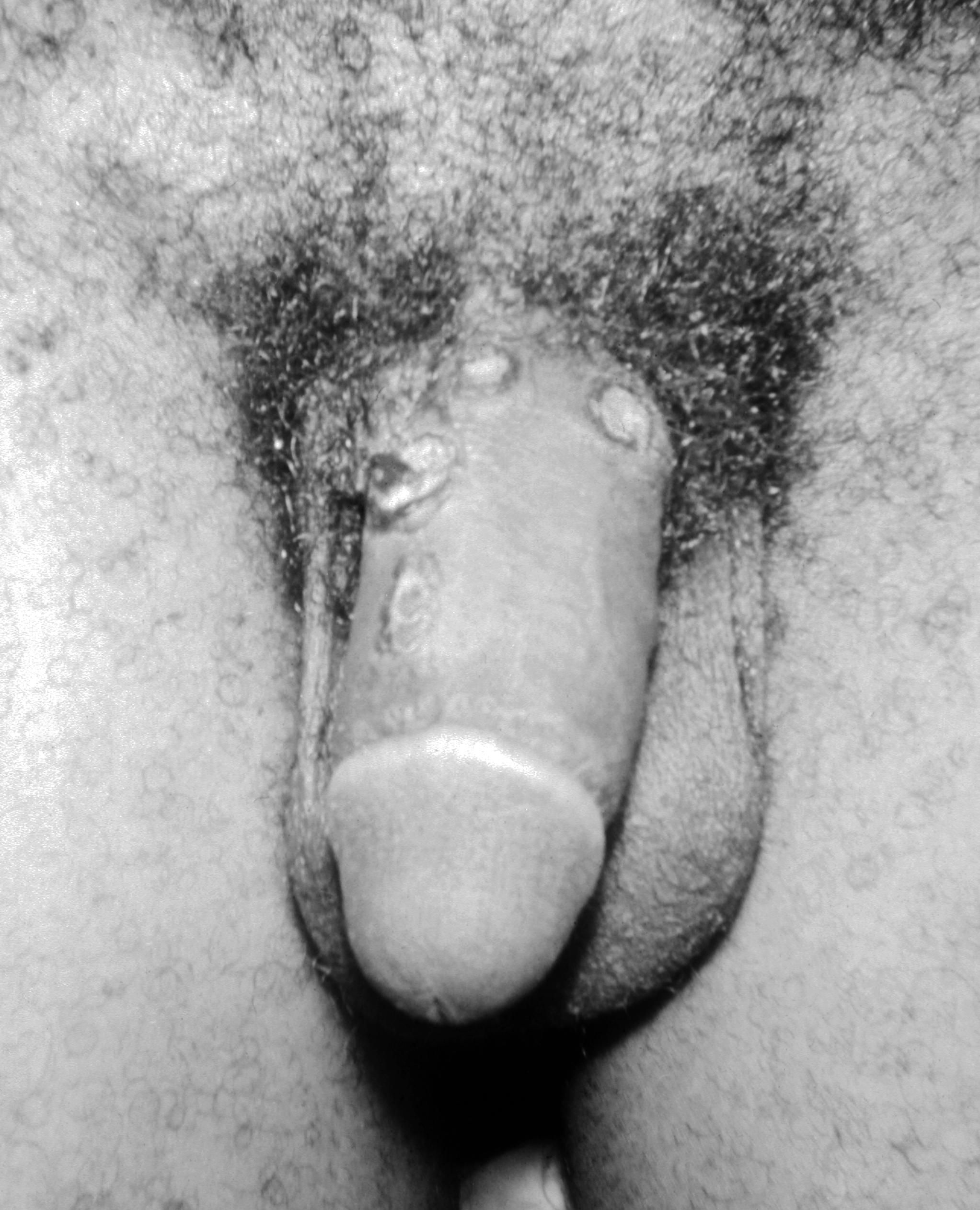 Фотографии с половыми органами женщин 6 фотография