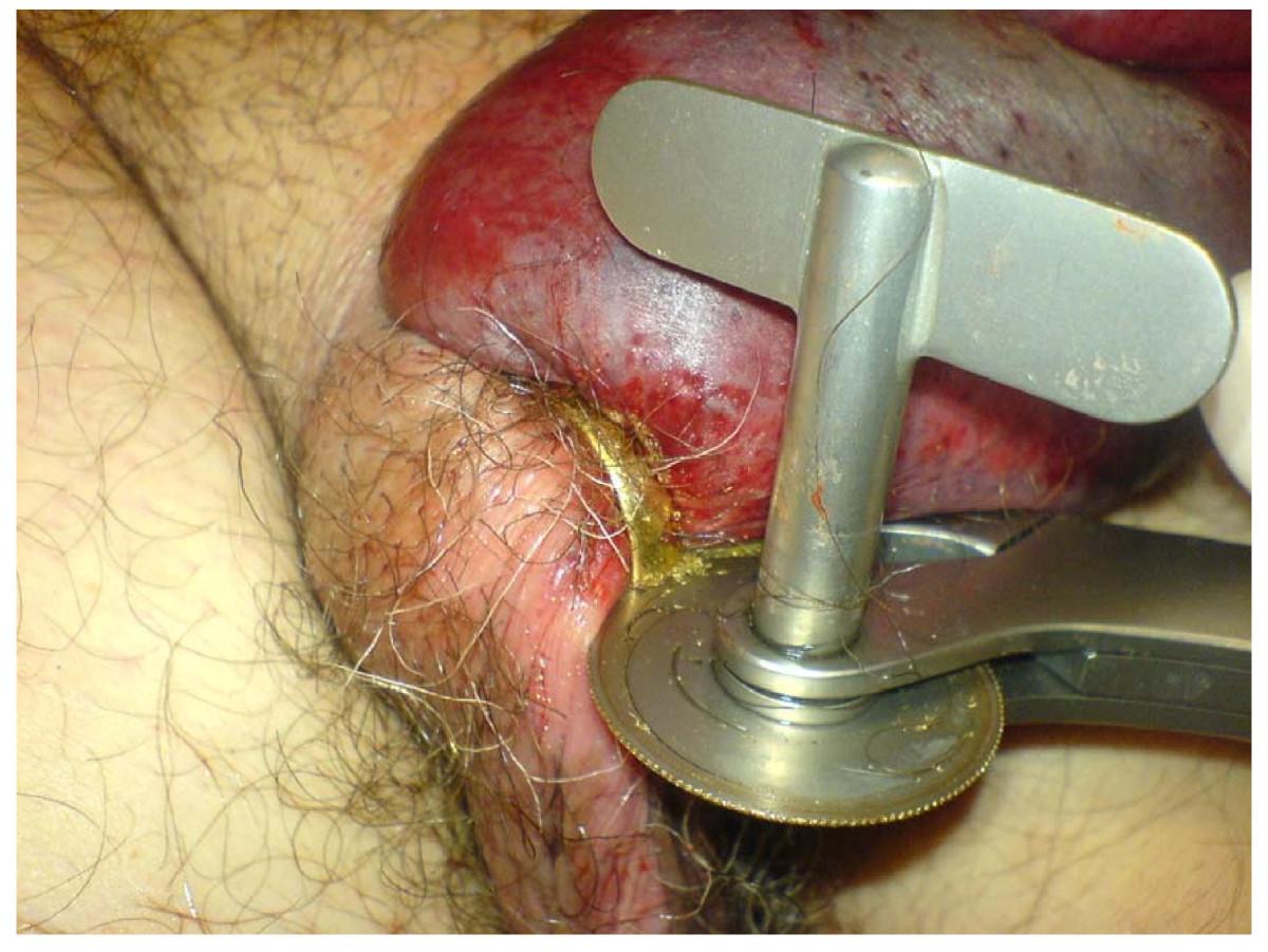 selber fesseln penis im staubsauger