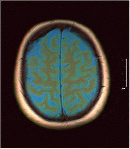 Brain MRI 0129 03.jpg