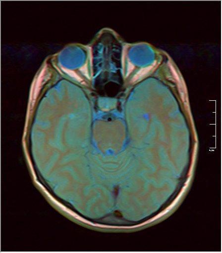 Brain MRI 0146 13.jpg