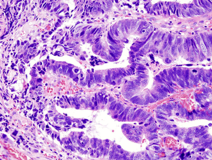 Colon Cancer Vs Ibs