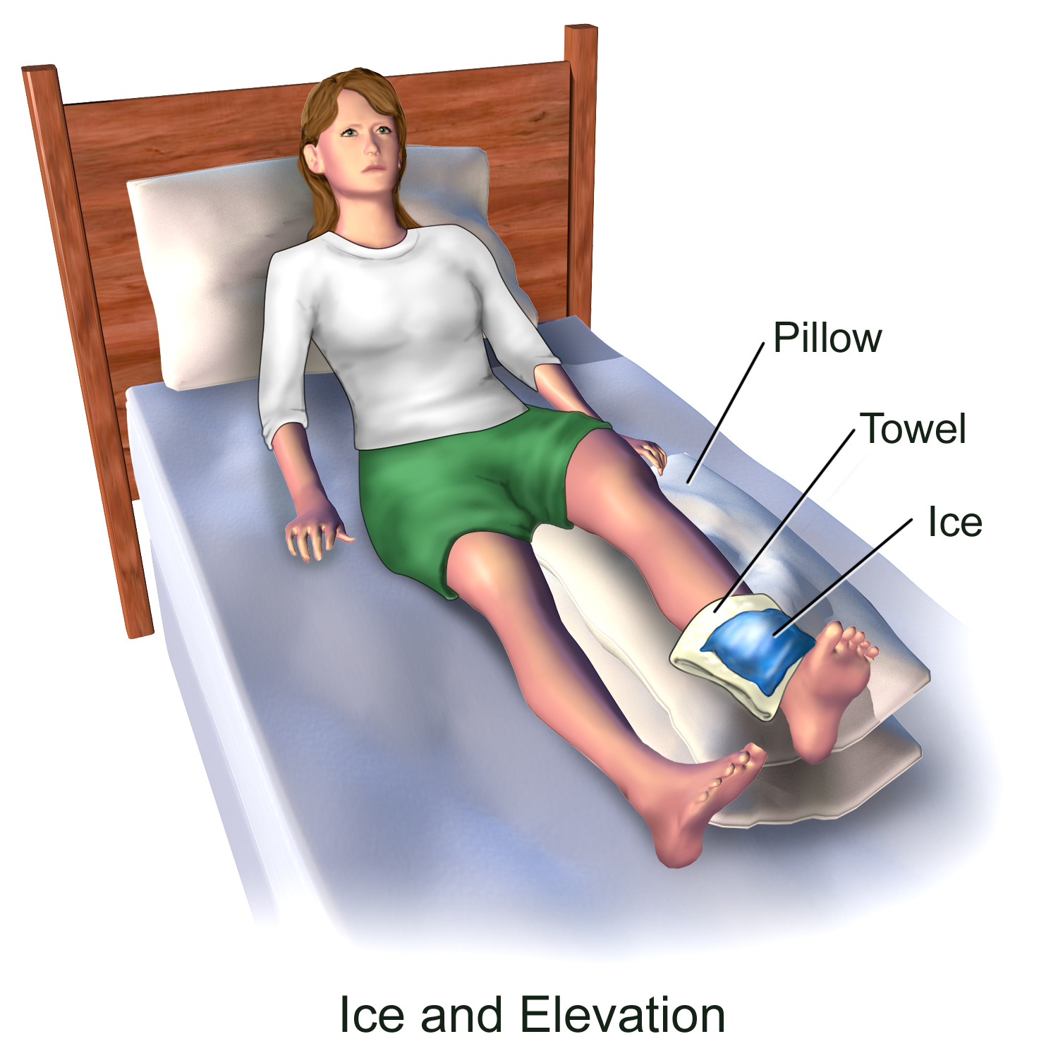 Image result for Ice Therapy