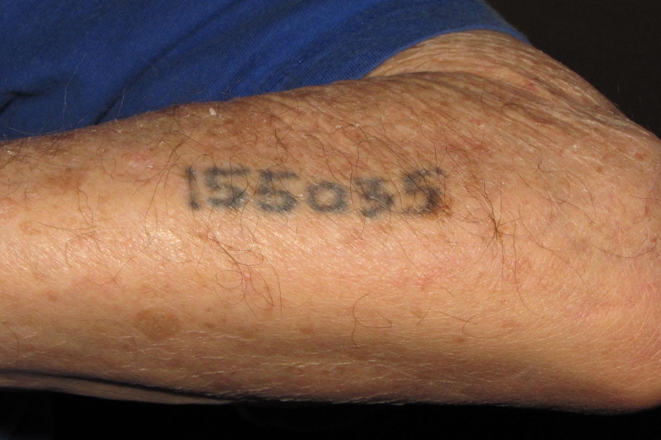 Plikjerzy Kamieniecki Auschwitz Survivor Displays Tattoo