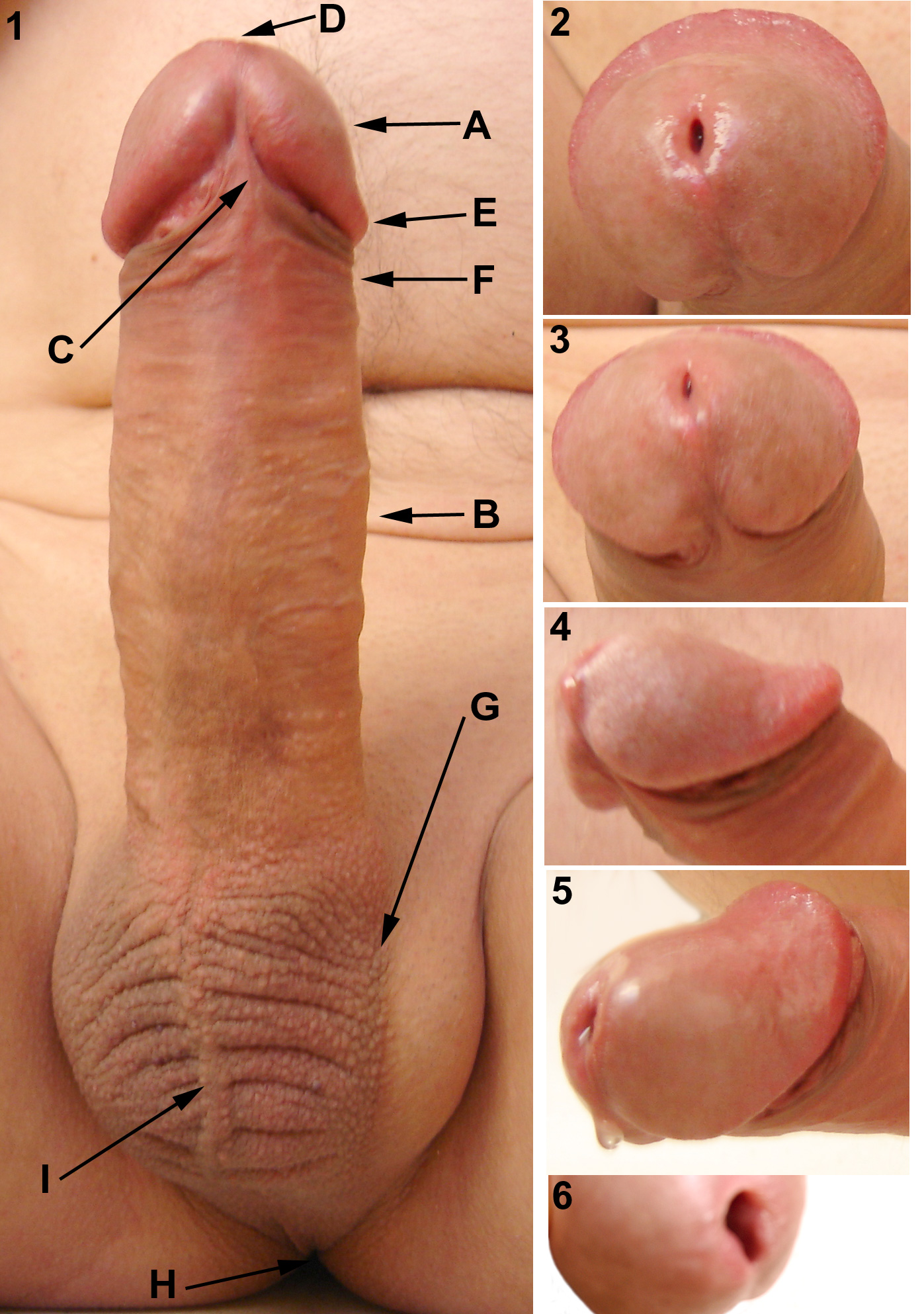 https://upload.wikimedia.org/wikipedia/commons/d/d9/Male-Genital-Anatomy-Erect-Glans-Close-Up.jpg