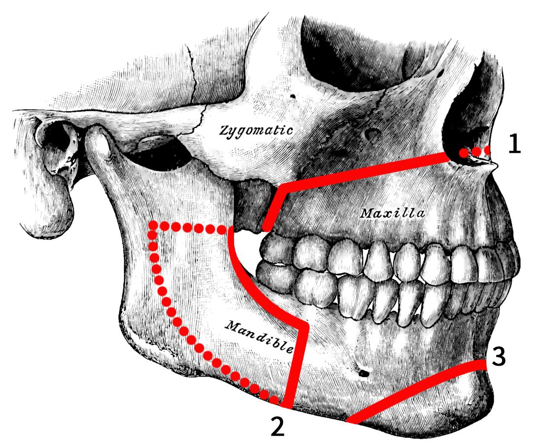 Orthognathic Surgery Wikipedia