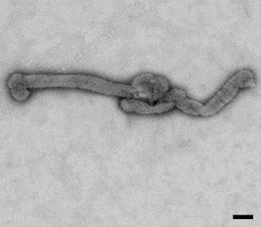 Bourbon virus filament (EID 2015 Fig 2a)