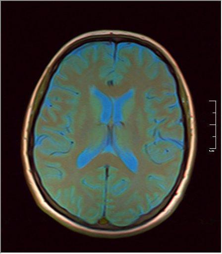 Brain MRI 0076 08.jpg