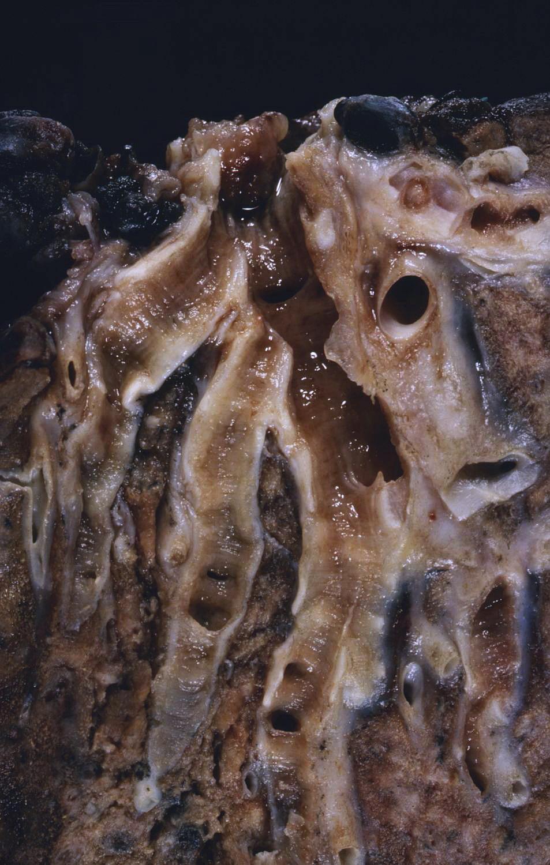 Depiction of Bronquiectasia