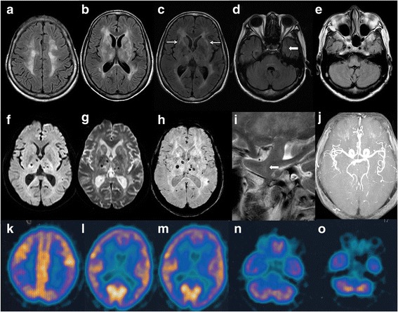 Cranial imaging of a FFI patient