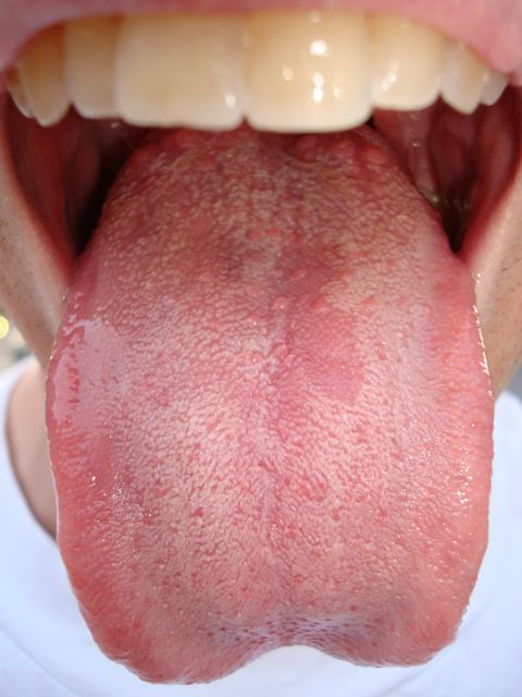File:Fungal tongue.jpg - Wikimedia Commons