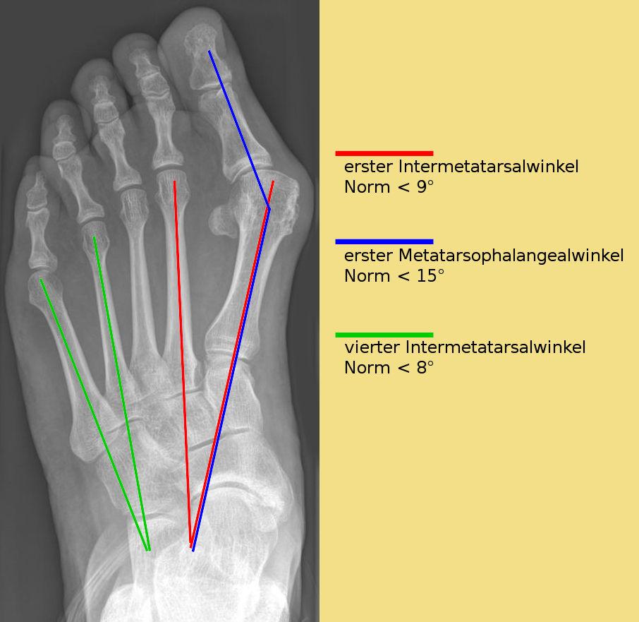 Валюфикс фиксаторы для косточек на ногах