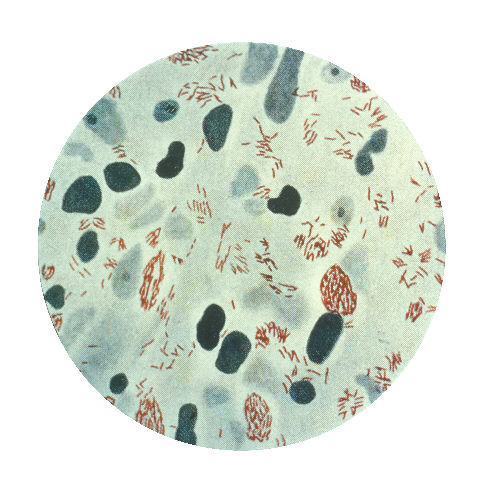 Mycobacterium leprae seen in a skin lesion sample