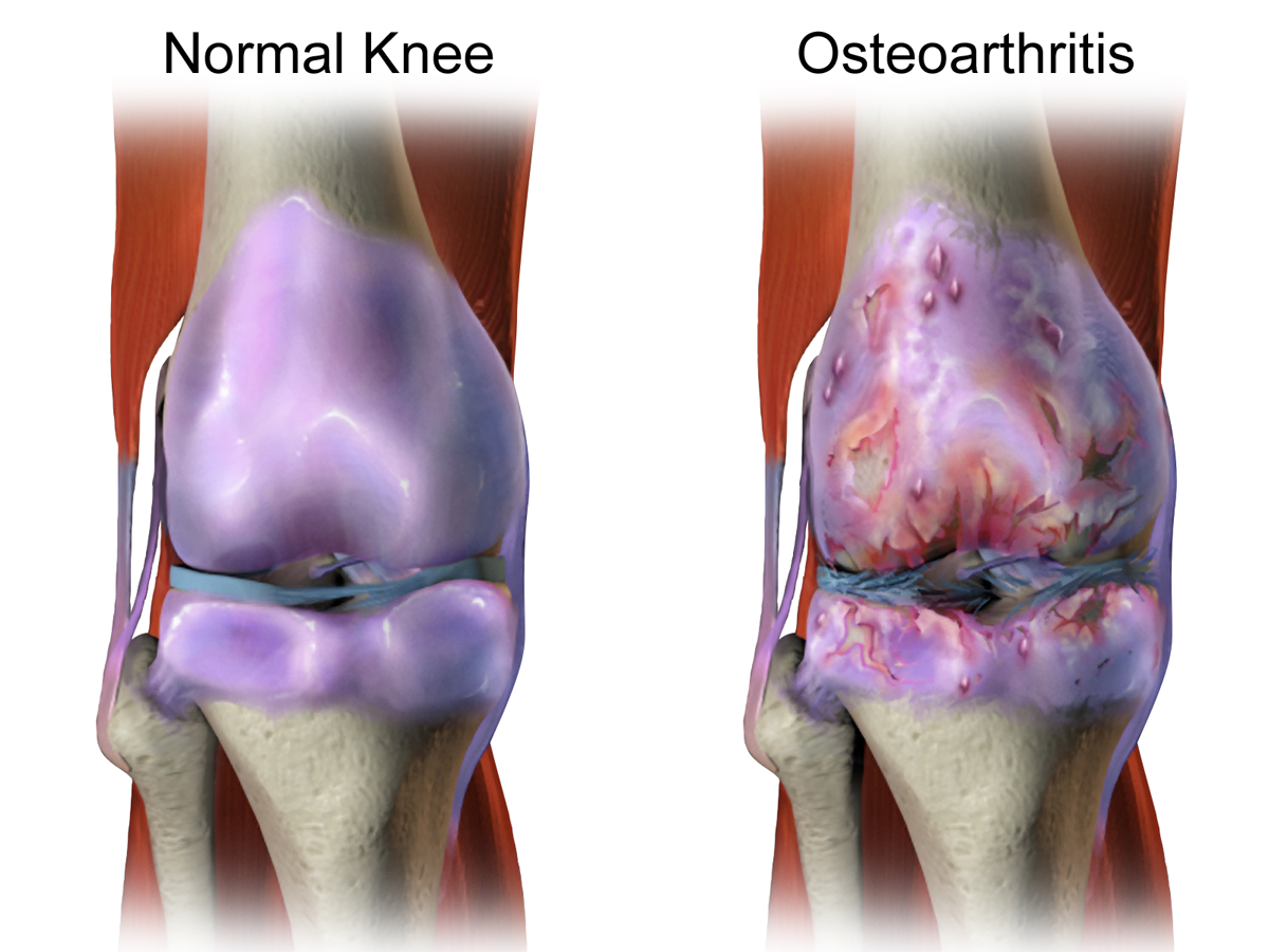 Image result for osteoarthritis knee