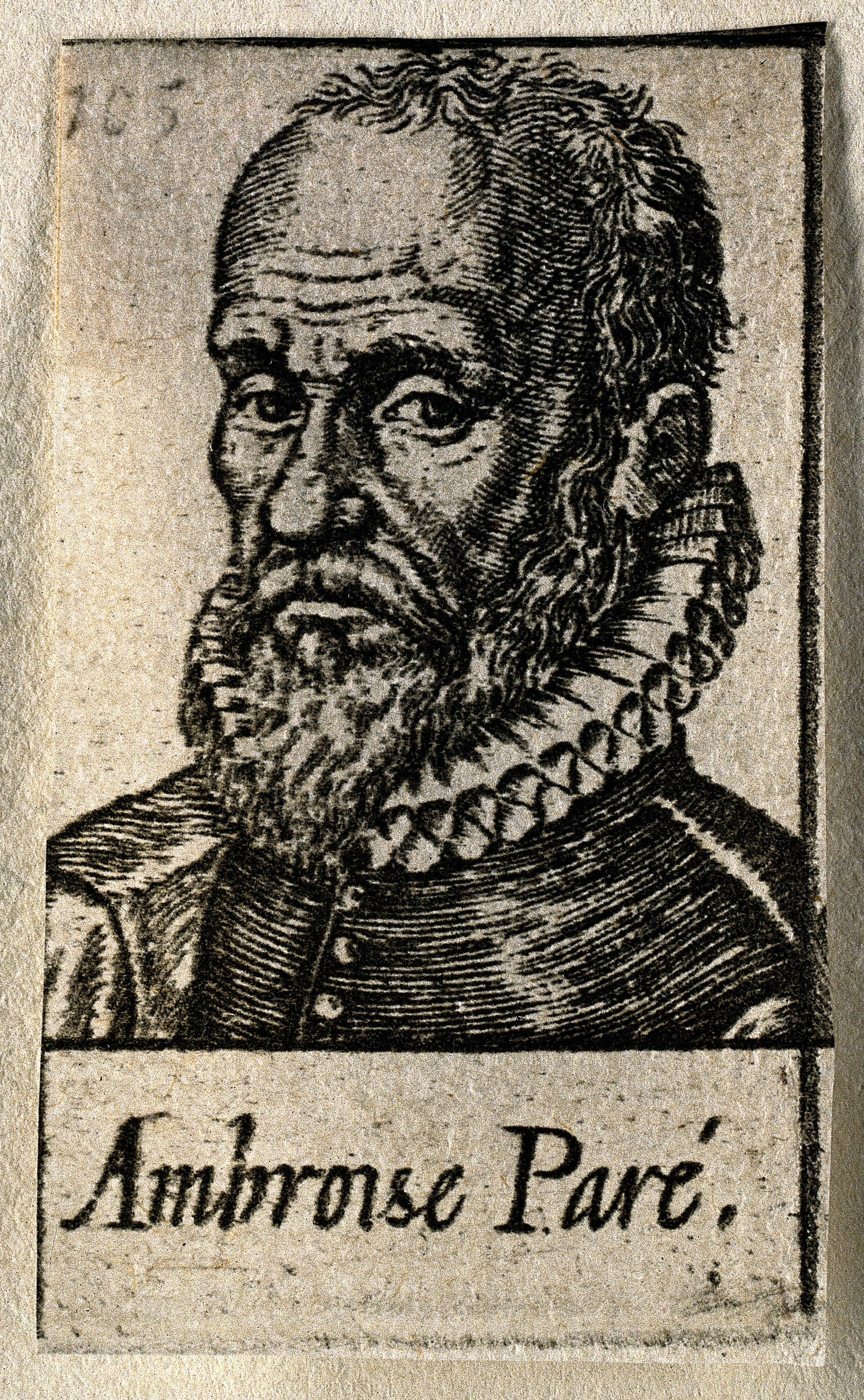File:Portrait_of_Ambroise_Pare_(1510_ _1590),_French_surgeon_Wellcome_V0004470 on Numbe Line