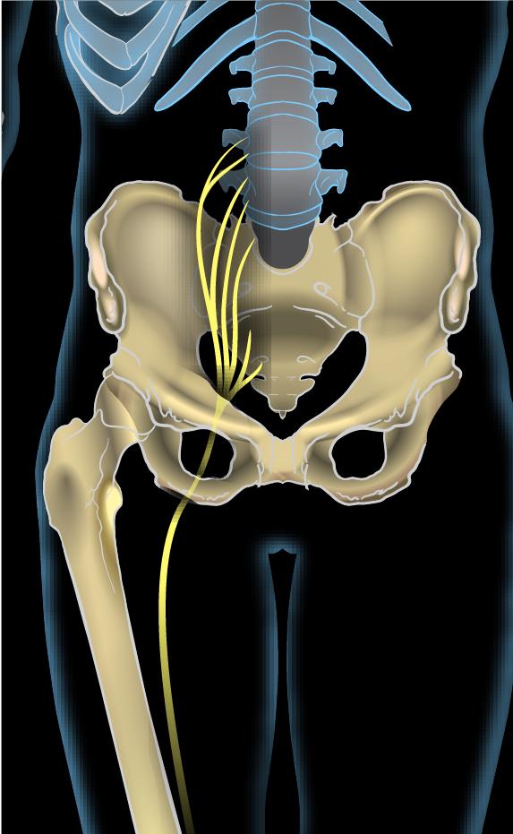 Sciatic nerve - Wikipedia