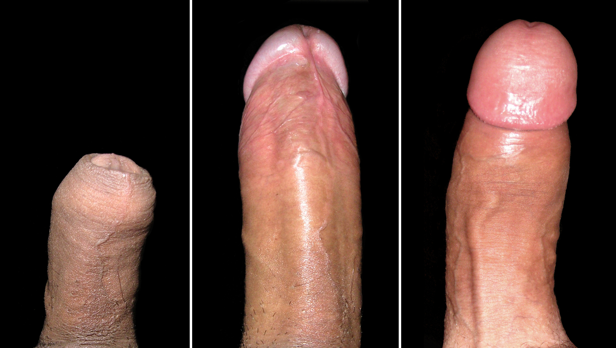 Enlarge penis glans