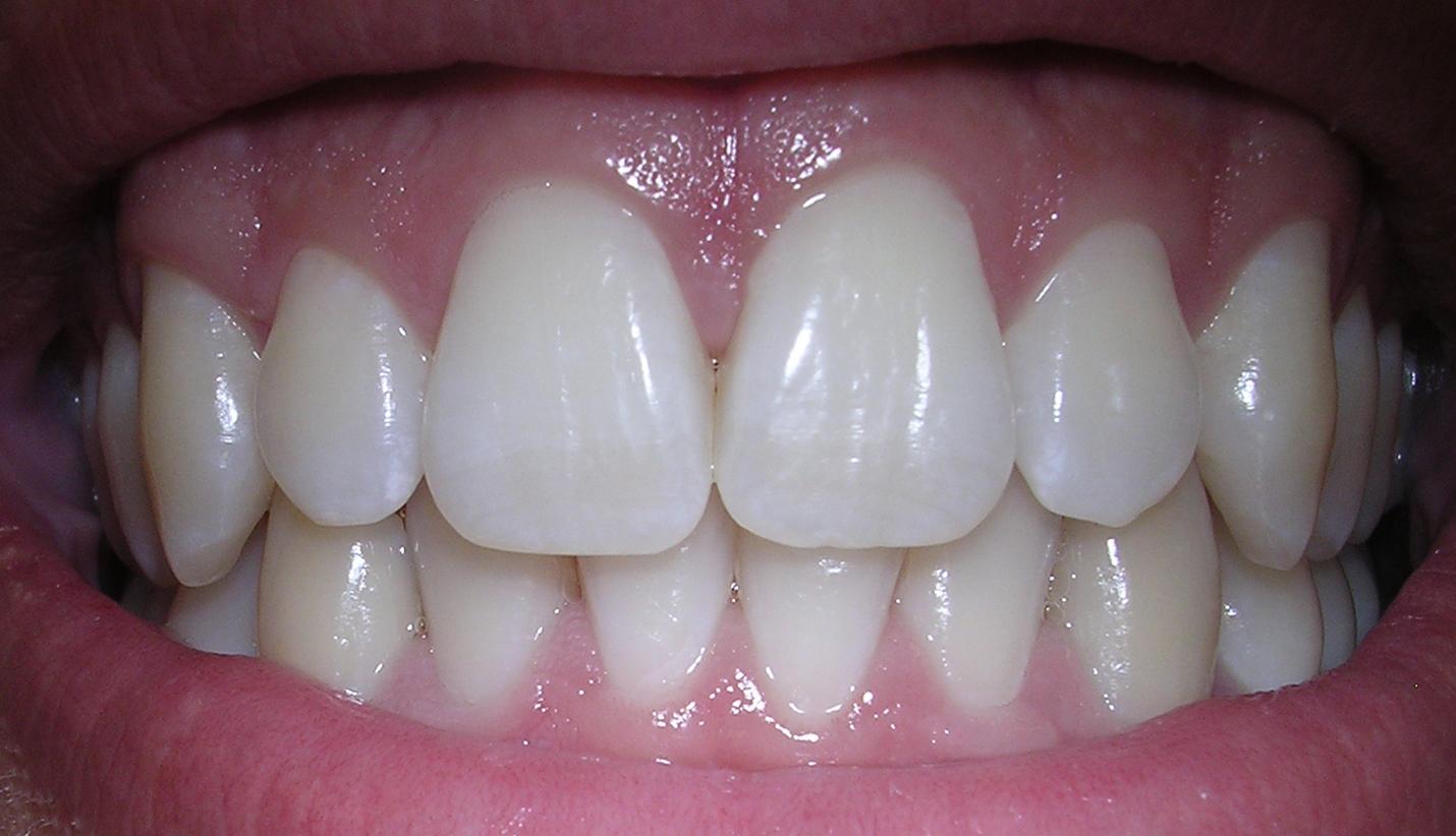 5 Cara Memutihkan Gigi Anda Secara Alami Masbroo Com