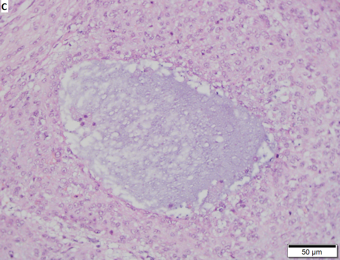 granulosa cell tumour Granulosa cell tumors constitute less than 5 % of all ovarian tumors unlike epithelial ovarian tumors, they occur in a younger age group, are usually detected in an early stage and often have.
