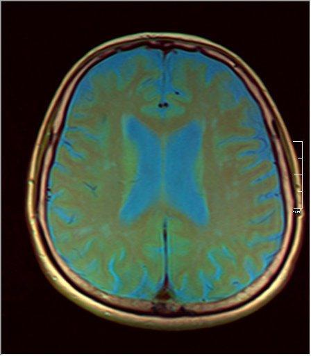 Brain MRI 07 0045 t1 pd t2.jpg