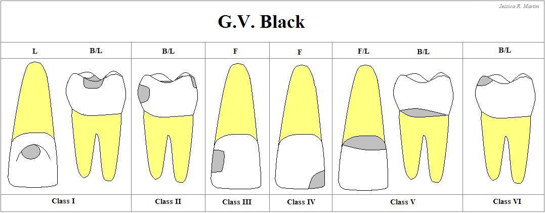 G.V. Black's Classification of Carious Lesions